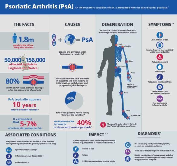 Image result for INFOGRAPHICS psoriatic arthritis